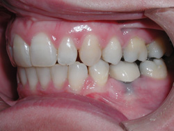 Metal Free Crowns - After