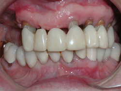 Metal Free Crowns - Before