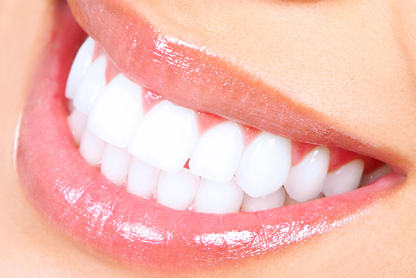 Teeth Whitening Warwick RI